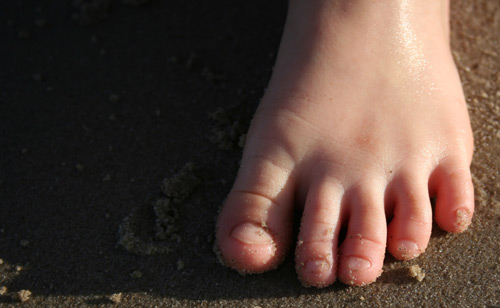 Aisha's foot, April 2010