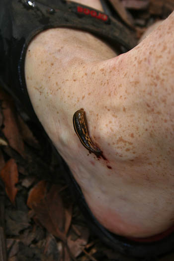 Leech on my foot, Dorrigo National Park, January 2011
