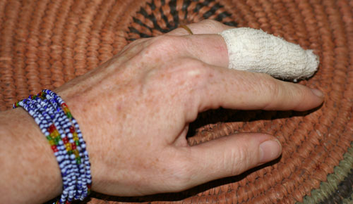 Bandaged finger, May 2008