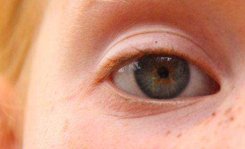 Brioni's eye, November 2011
